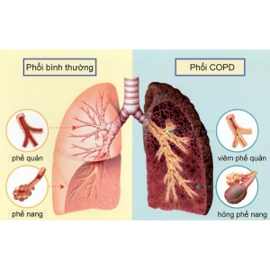 Personalizing and targeting therapy for COPD