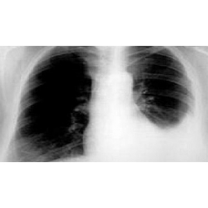 What is pleural effusion?