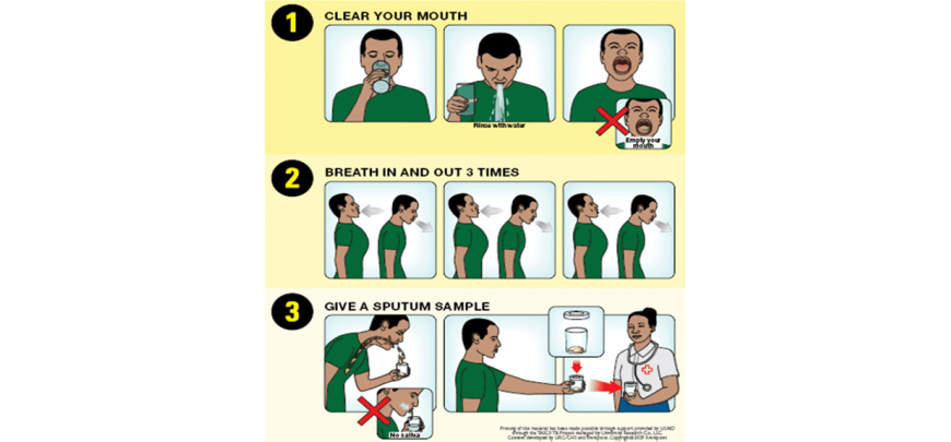 instructions for collecting sputum for tuberculosis test